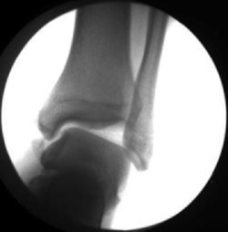 ankle 08